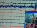 EEG Screen
